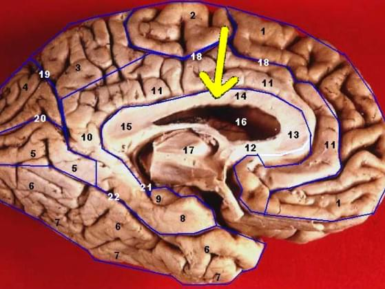 A corpus callosotomy involves ____.