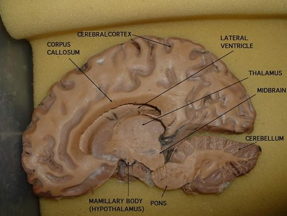 What is the function of the cerebral aqueduct?