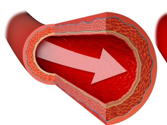 Which of these is the largest blood vessel?