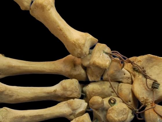 Where is the smallest human bone located?