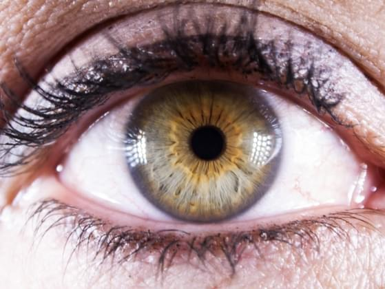 Do you have any distinguishing eye features?