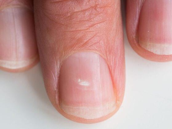 Do you have white spots on your nails?