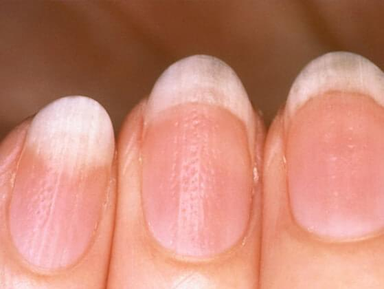 Ever noticed discoloration in your nails?
