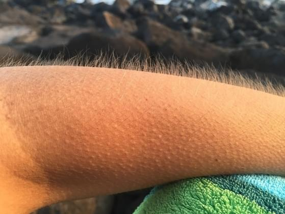 Do you often have goosebumps, even when it's warm?
