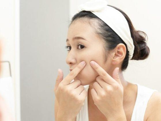 Do you have lots of acne on your skin?