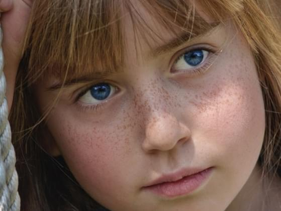 Did you have freckles?