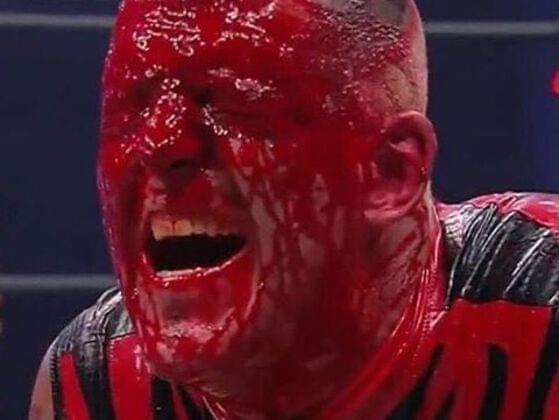 How Did Dustin Rhodes Get Busted Open?