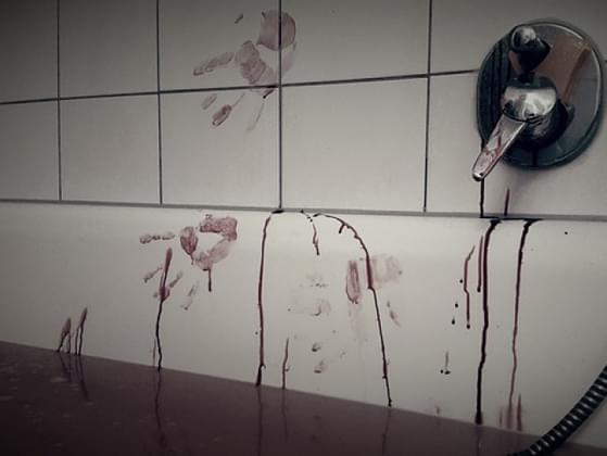 Which type of blood trail would you leave behind?