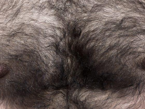 This hormone is known to affect the growth of body hair, as well as muscle mass and bone mass.