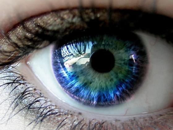 What is your eye colour?